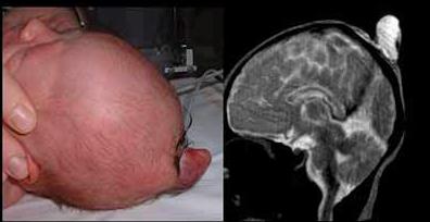 41-encephalocele-du-vertex
