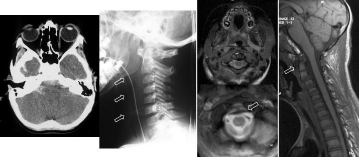 dislocation C0C1 bis