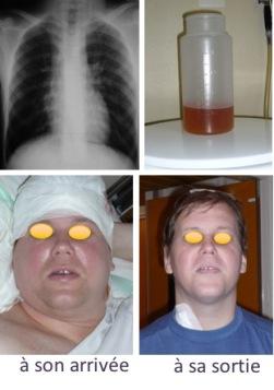 DVA shunt nephritis