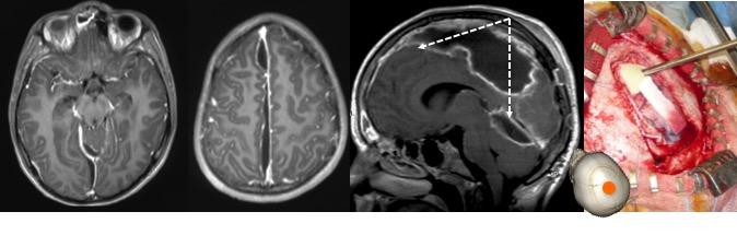 empyème craniotomie