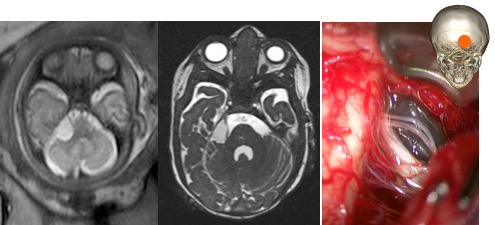 neuroglial APC