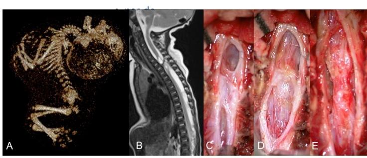 SCIWORA in utero