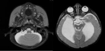 StAq rhombencéphalosynapsis