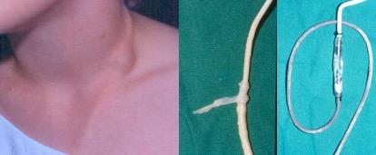 valve cicatrice