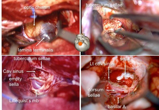 cranio voie sous-frontale 2