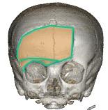 craniotomie