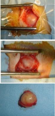 dermoïde résection