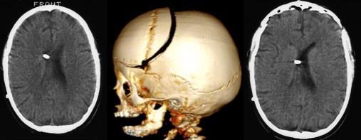 pseudo TC cranioplastie