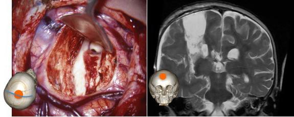 hémisphérotomie perop