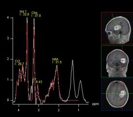Verstaevel Eve 17Nov21 spectro.jpg