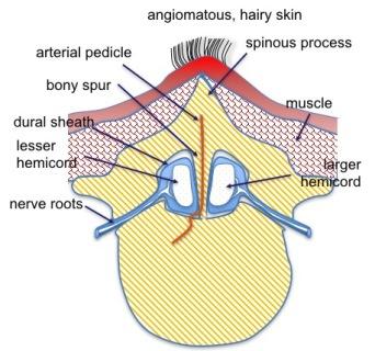 diastématomyélie 1