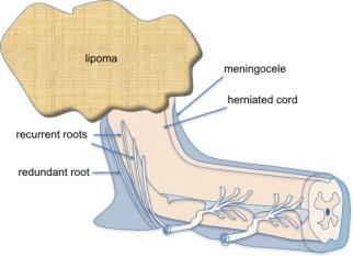 lipocystocele 1