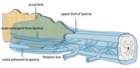 lipome-terminal1.jpg