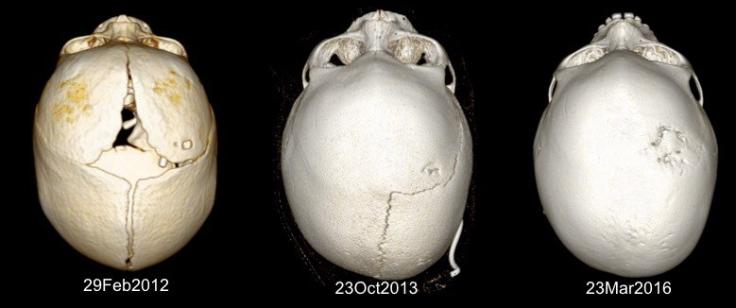 hyperdrainage-craniostc3a9nose-lebec.jpg