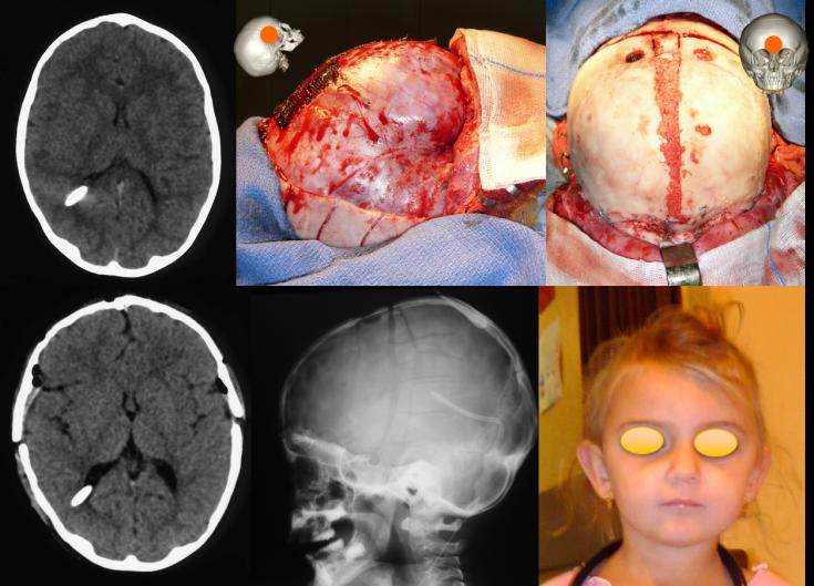 hyperdrainage craniosténose op