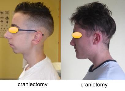 cranio-craniectomy