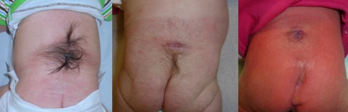 diastémato peau