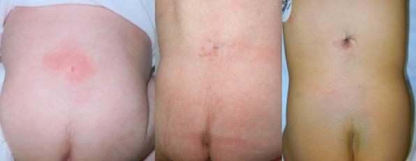 fistules peau