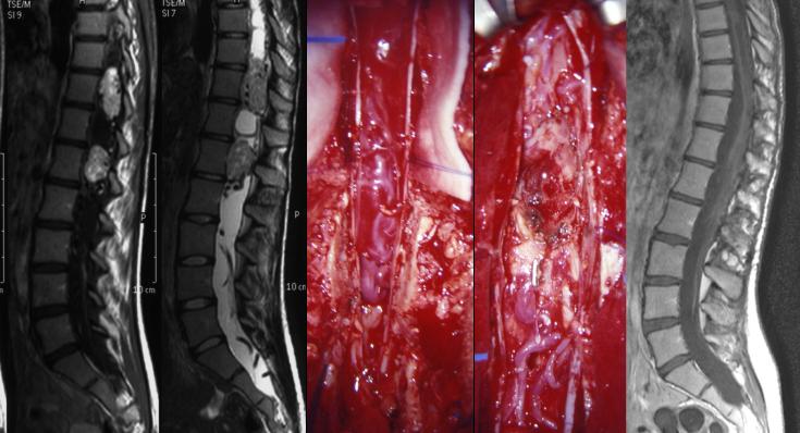 hémangioblastome
