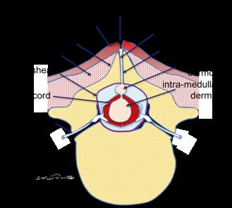 graph fistule