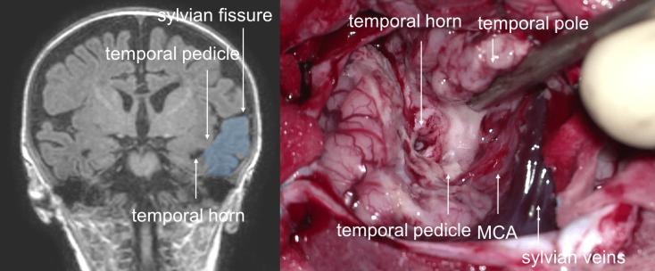 hippocampectomie 2
