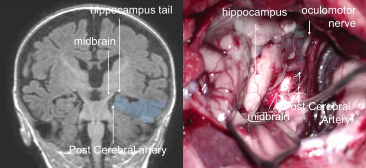 hippocampectomie 3