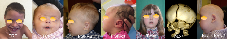lambdoid genes CrSt