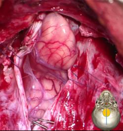 Chiari bulging tonsil