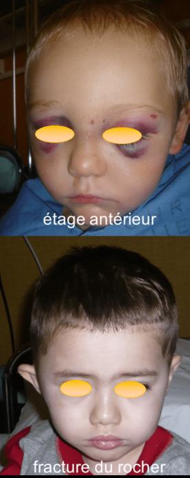 fracture base clinique