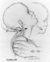 Hadley SBS Spine