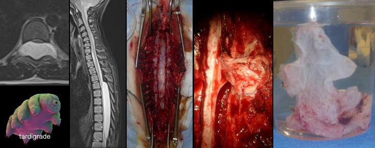 Rawash intradural.png